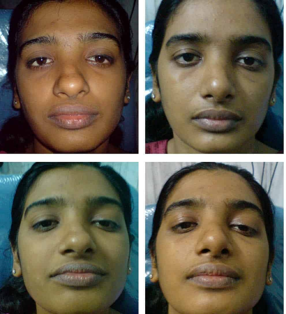 How Bulbous Nasal Tip Corrected Rhinoplasty In India